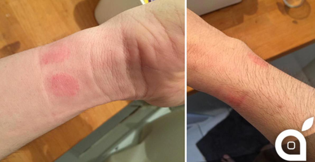 Applewatch 皮膚の炎症